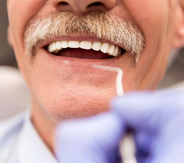 Carlsbad Adjusting to New Dentures