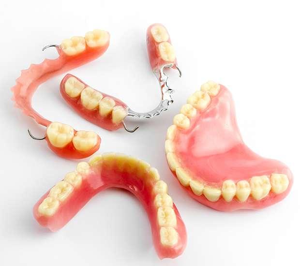 Carlsbad What Do I Do If I Damage My Dentures