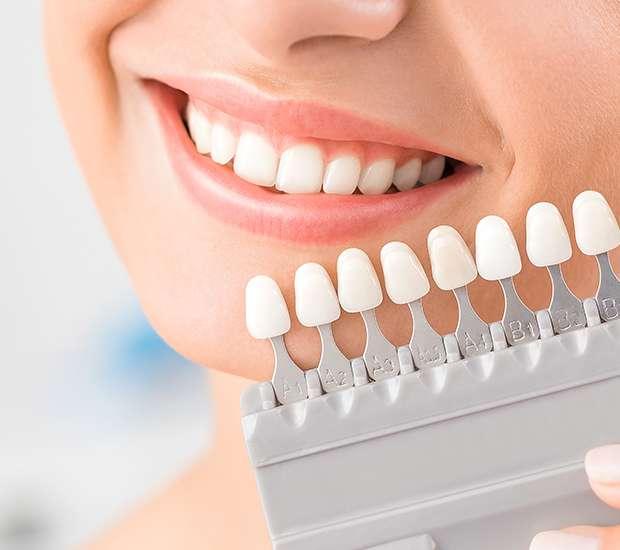 Carlsbad Dental Veneers and Dental Laminates