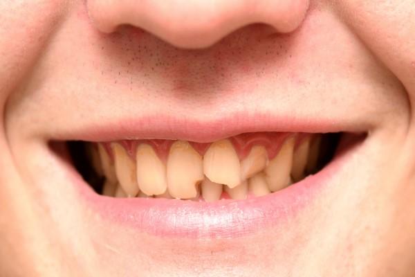 Is A Broken Tooth A Dental Emergency?