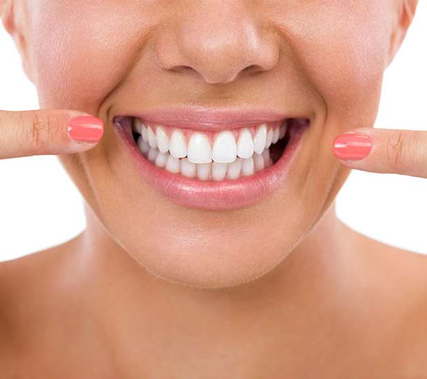 Carlsbad What Is Gum Contouring & Reshaping
