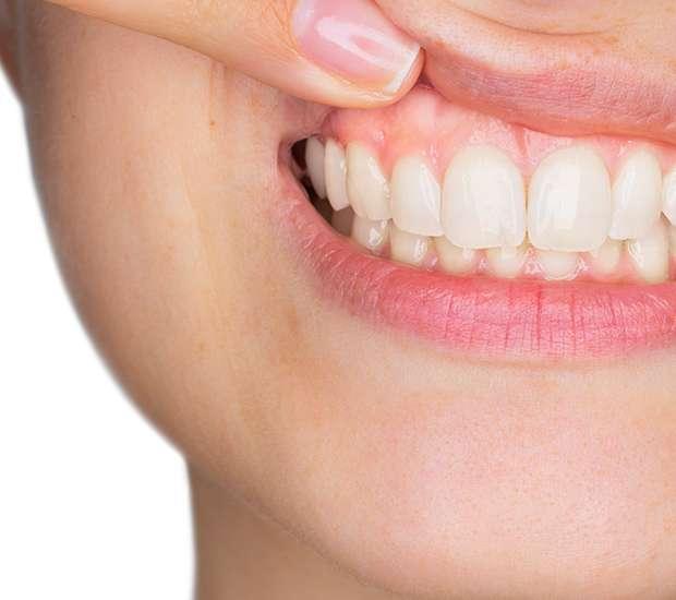 Carlsbad Gum Disease