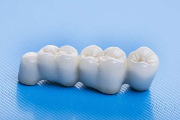 How Many Teeth Can Dental Bridges Replace