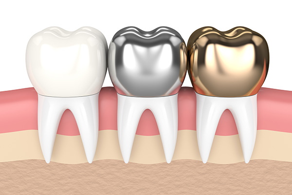 Metal Crowns Vs  Porcelain Dental Crowns