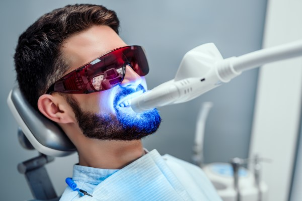 Reasons Why You Should Choose Professional Teeth Whitening