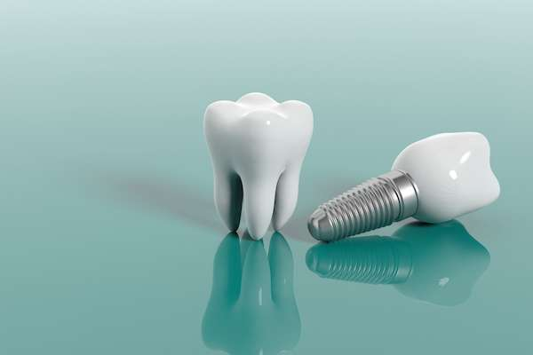 Multiple Teeth Replacement Options: One Implant for Two Teeth from Ida Alfonso, DMD in Carlsbad, CA