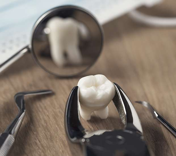 Carlsbad When Is a Tooth Extraction Necessary